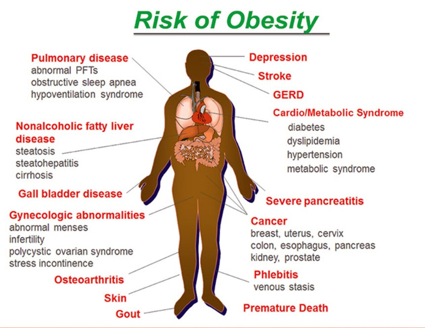 diabetes and obesity health risks Obesity is defined as abnormal or excessive fat accumulation that may impair health it is caused by an energy imbalance over time (ie, when more calories are consumed than used by the body), leading to the storage of excess energy as fat 4,5 complex and multifactorial in nature, obesity is influenced by physiological, psychological.