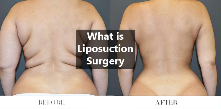 What Is Liposuction Surgery Doctor Asky