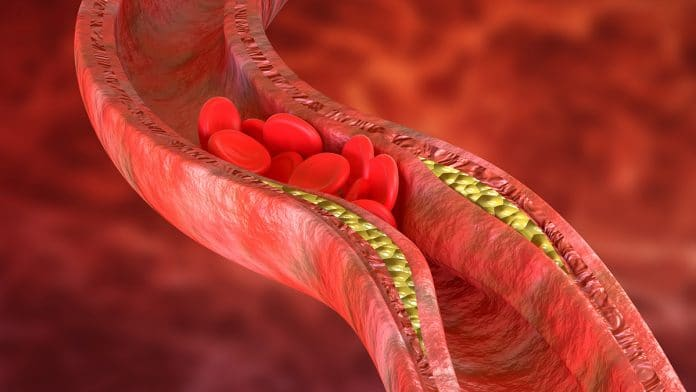 Foods to Eat for Healthy and Clean Arteries!