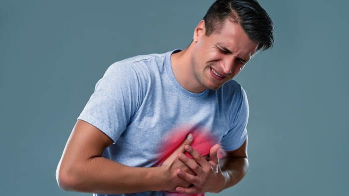 What Is Myocardial Infarction