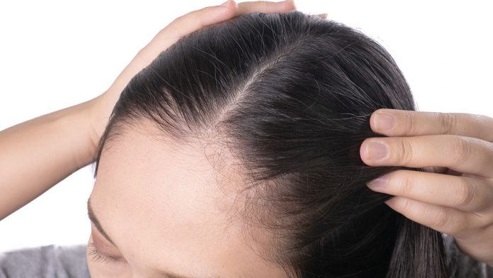 How To Deal With Thinning Of Hair