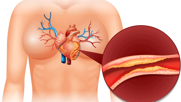 How To Deal With Cholesterol Problems