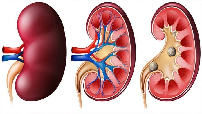 Top 10 Ways To Avoid Kidney Stones