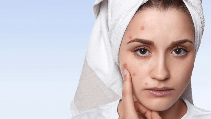 HABITS-THAT-CAUSE-ACNE