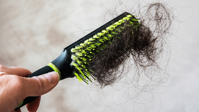 Causes-and-Treatments-of-Hair-loss