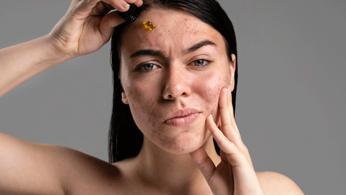 Treat Acne Caused By Hormonal Imbalance